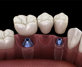 Animated dental implant supported dental bridge