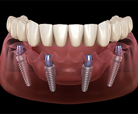 Aniamted dental implant supported denture