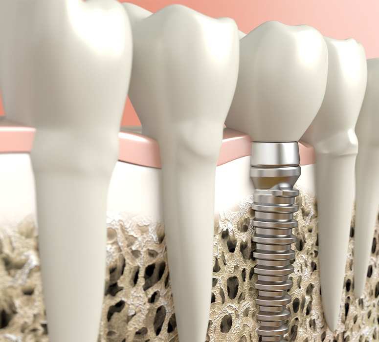 Animated smile with a new dental implant supported replacement tooth