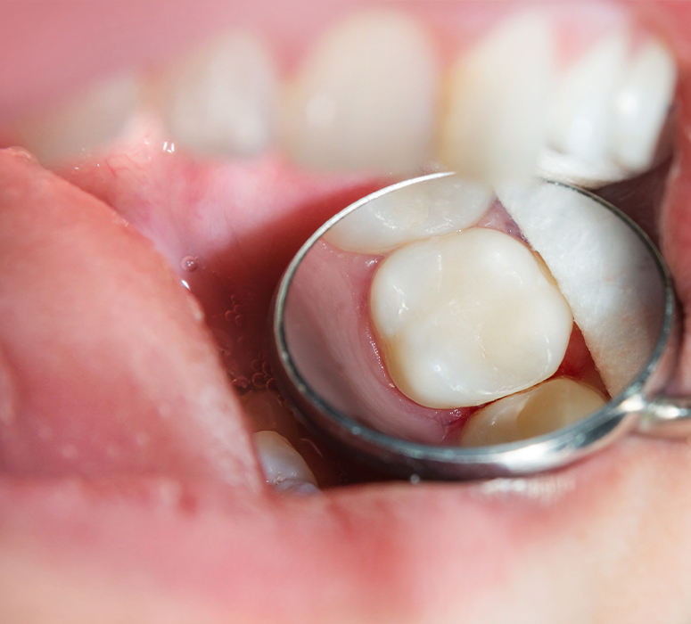 Closeup of health teeth after tooth colored filling placement